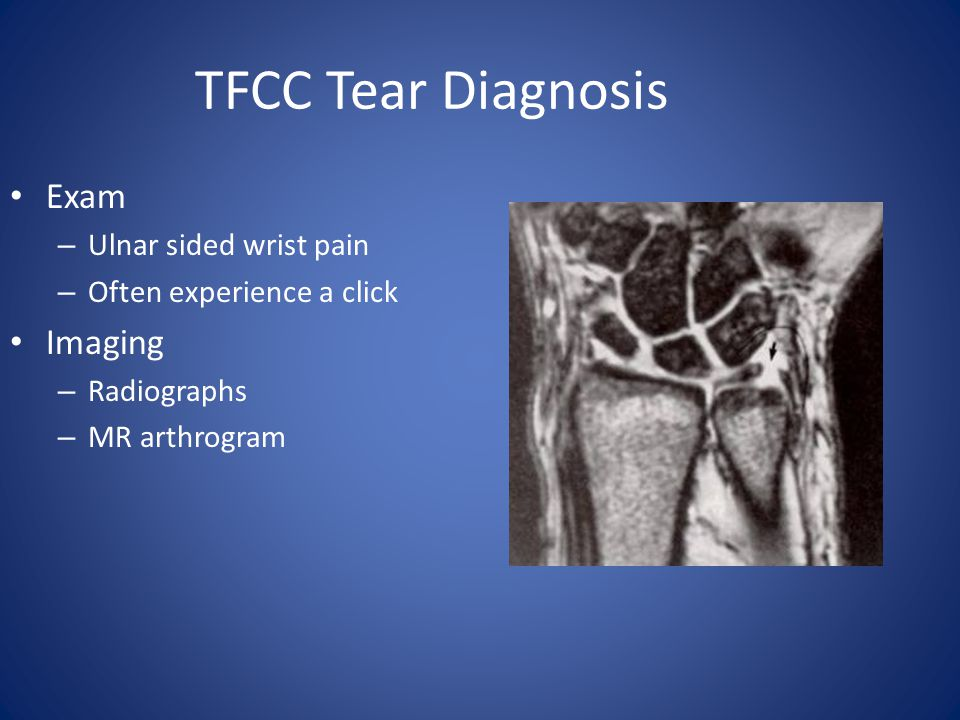 TFCC Tear Diagnosis Exam Imaging Ulnar sided wrist pain