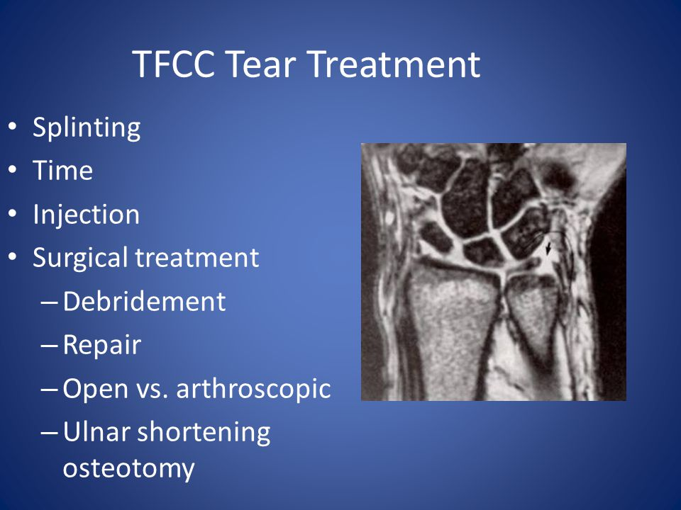 TFCC Tear Treatment Splinting Time Injection Surgical treatment
