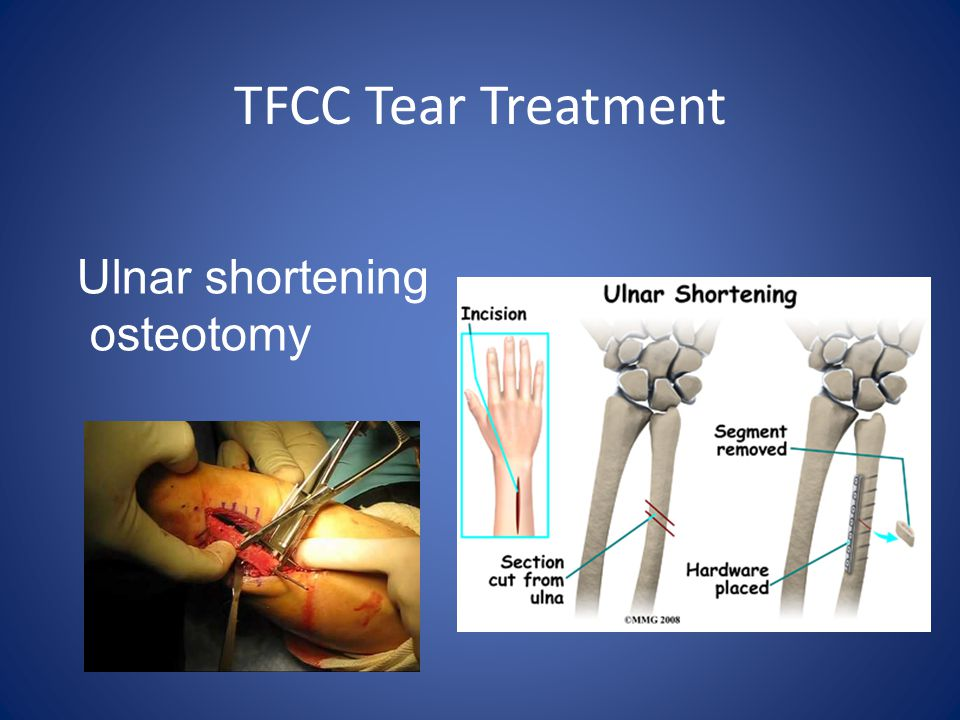 TFCC Tear Treatment Ulnar shortening osteotomy