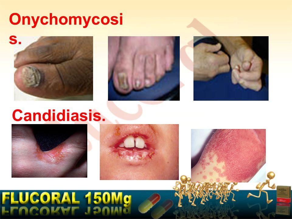 Onychomycosis. Candidiasis.