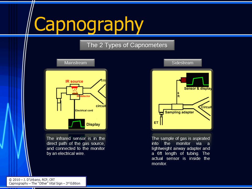 The 2 Types of Capnometers