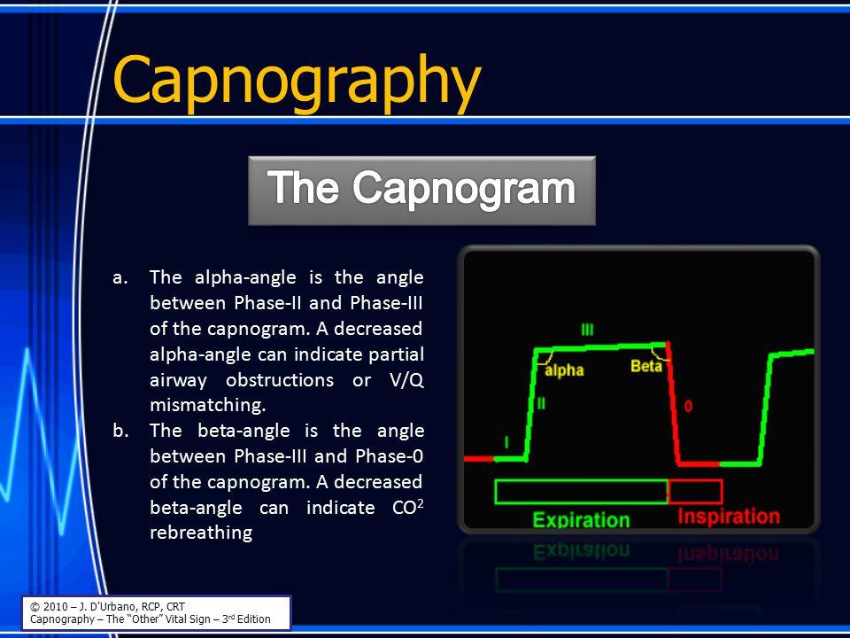 Capnography The Capnogram