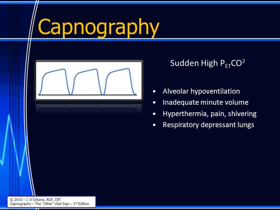 Capnography Sudden High PETCO2 Alveolar hypoventilation