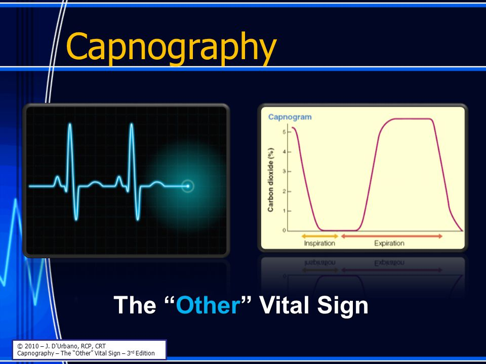 Capnography The Other Vital Sign © 2010 – J. D'Urbano, RCP, CRT