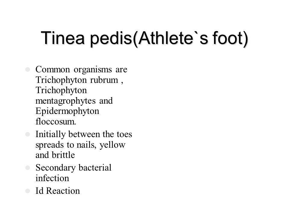 Tinea pedis(Athlete`s foot)