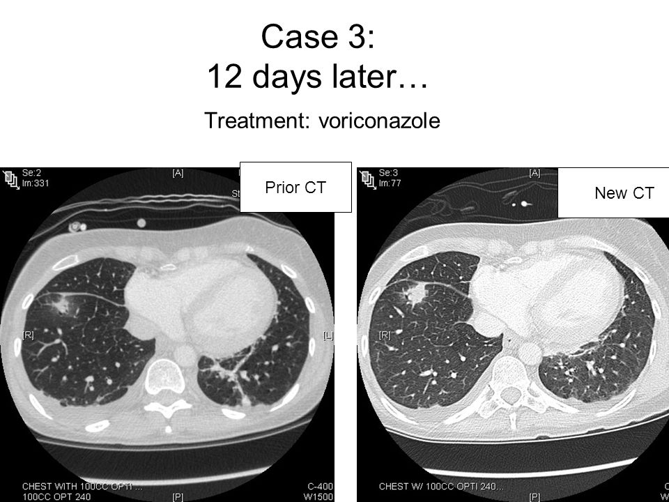 Case 3: 12 days later… Treatment: voriconazole