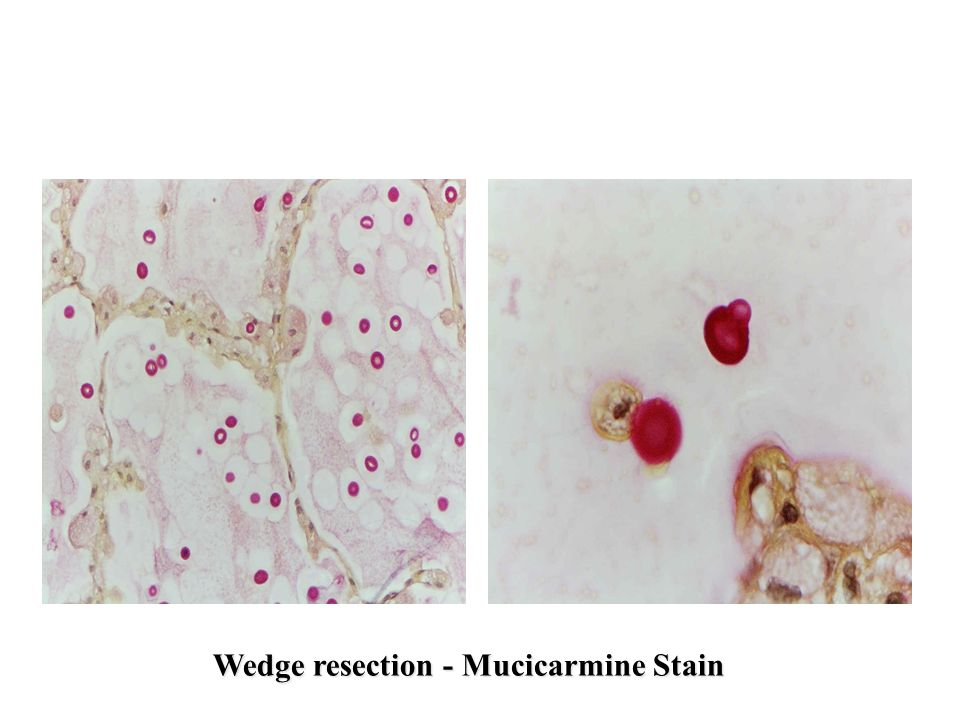 Wedge resection - Mucicarmine Stain