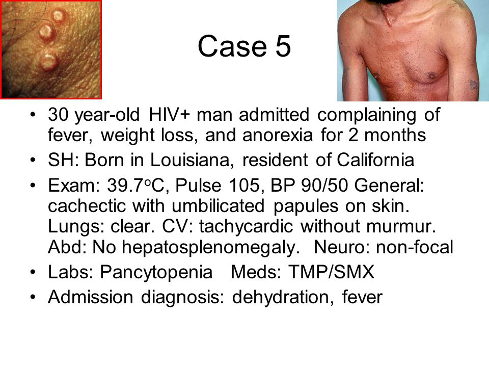 Case 5 30 year-old HIV+ man admitted complaining of fever, weight loss, and anorexia for 2 months. SH: Born in Louisiana, resident of California.