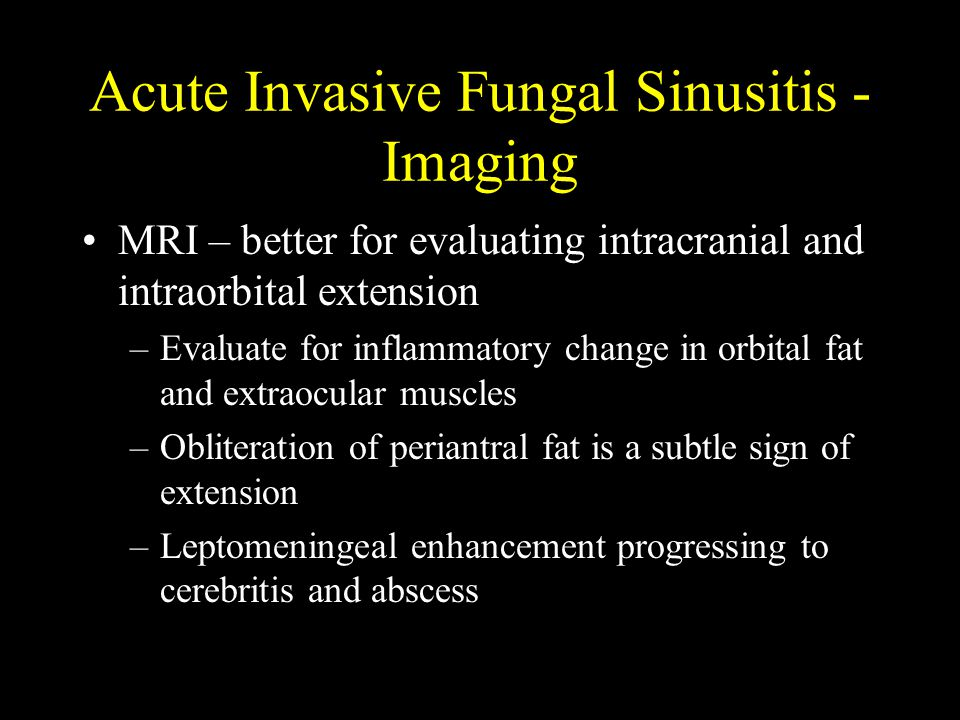 Acute Invasive Fungal Sinusitis - Imaging