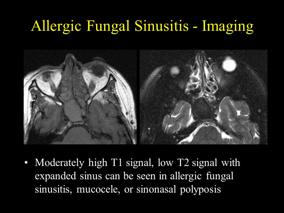 Allergic Fungal Sinusitis - Imaging