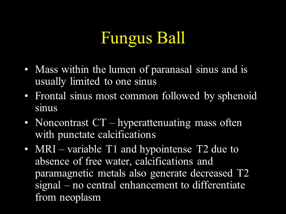 Fungus Ball Mass within the lumen of paranasal sinus and is usually limited to one sinus. Frontal sinus most common followed by sphenoid sinus.