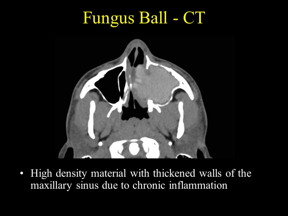 Fungus Ball - CT High density material with thickened walls of the maxillary sinus due to chronic inflammation.