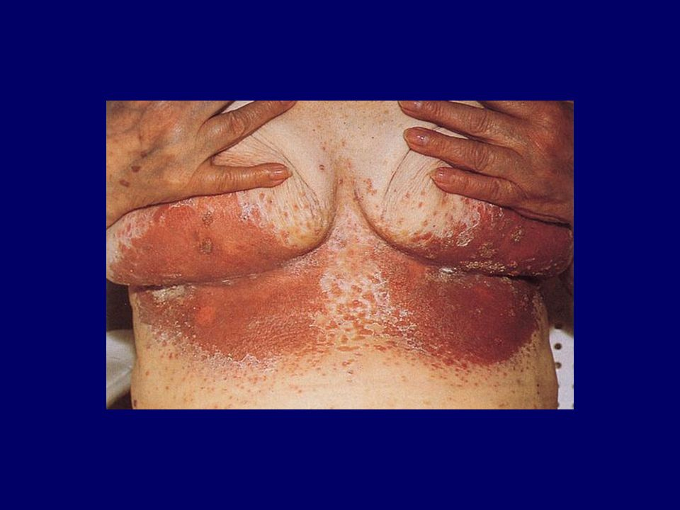 Cutaneous candidiasis involving the moist skinfolds under the breasts