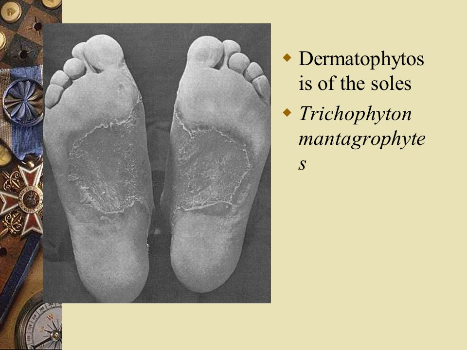Dermatophytosis of the soles