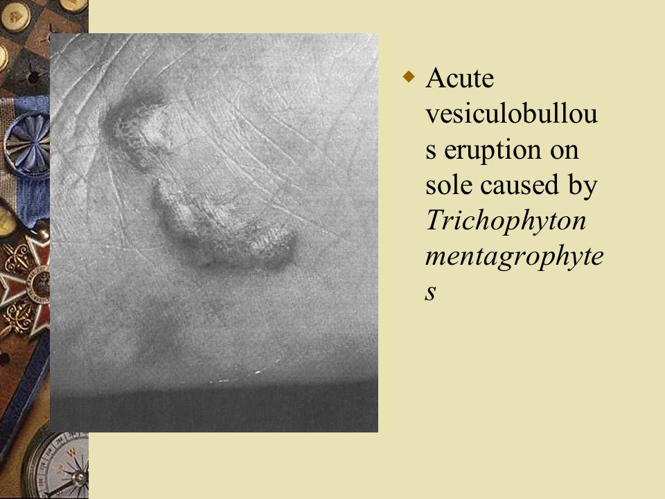 Acute vesiculobullous eruption on sole caused by Trichophyton mentagrophytes