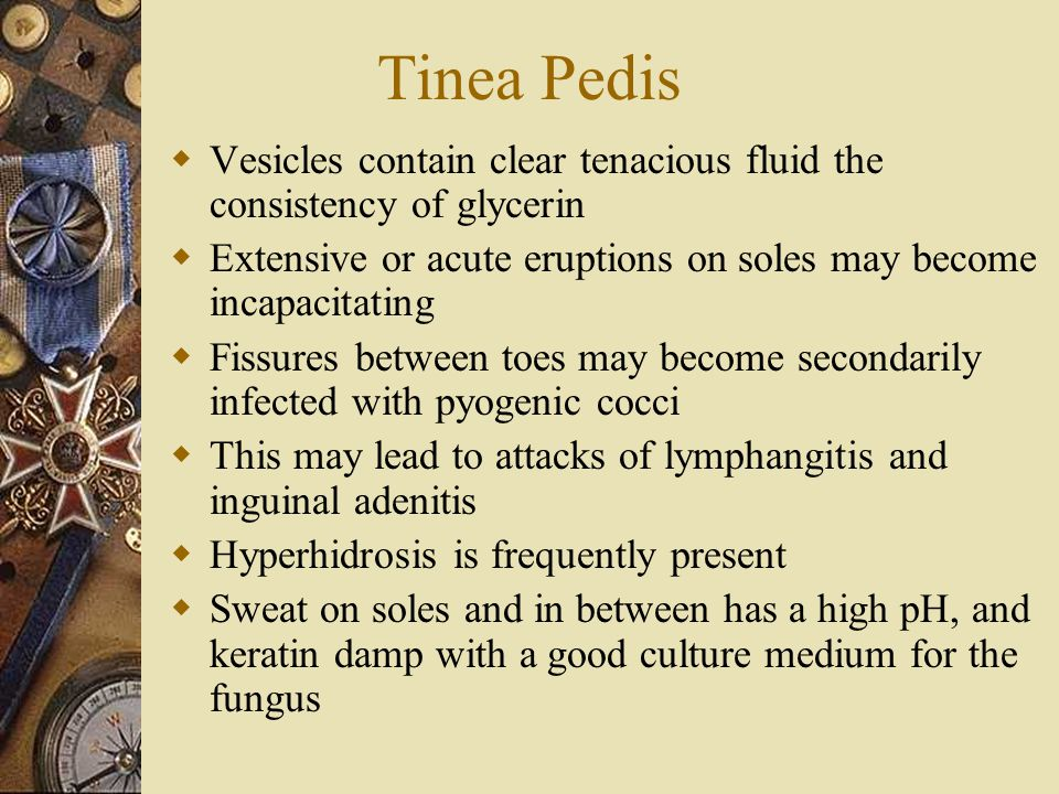 Tinea Pedis Vesicles contain clear tenacious fluid the consistency of glycerin. Extensive or acute eruptions on soles may become incapacitating.