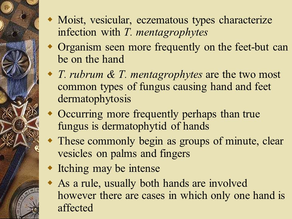 Moist, vesicular, eczematous types characterize infection with T