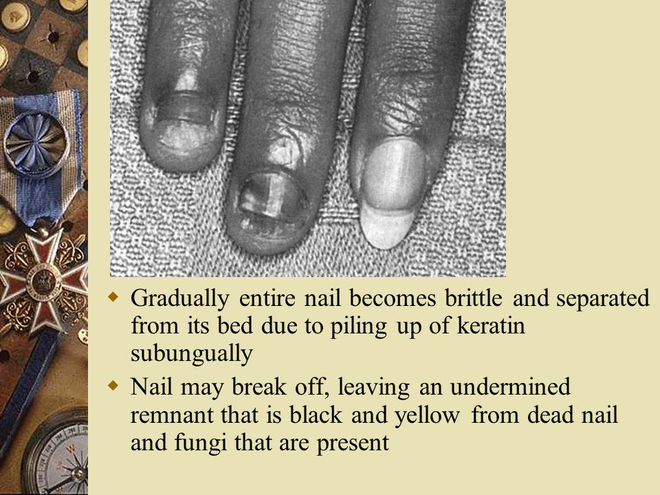 Gradually entire nail becomes brittle and separated from its bed due to piling up of keratin subungually
