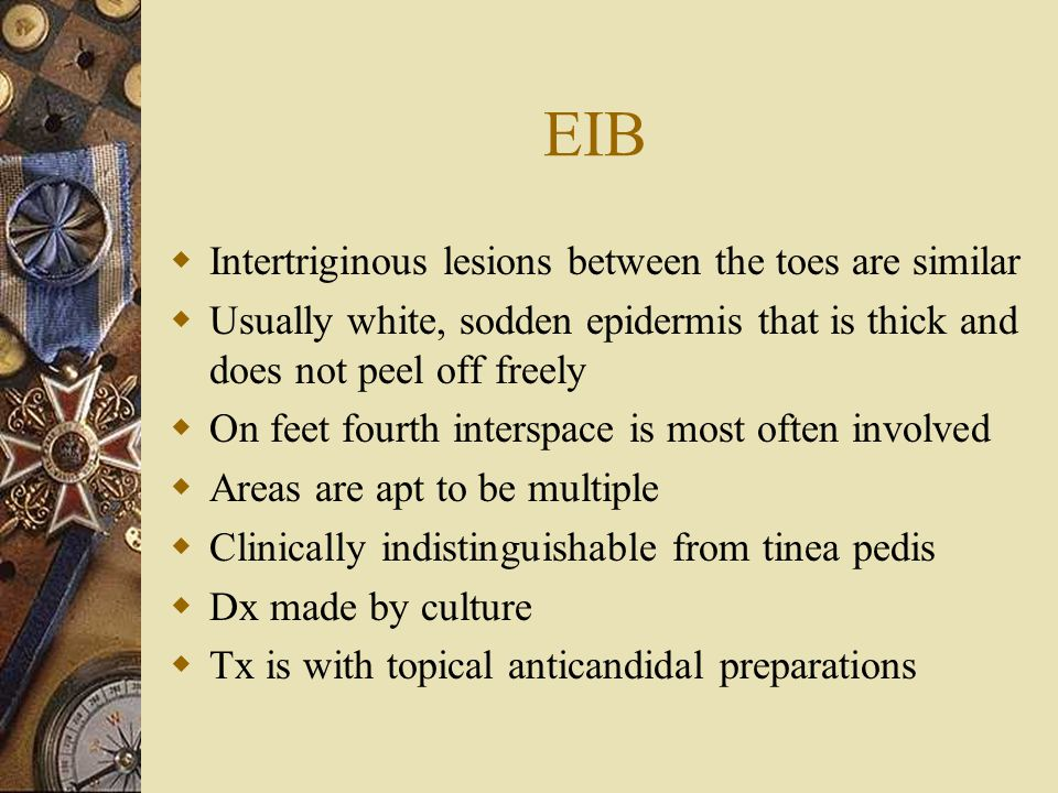 EIB Intertriginous lesions between the toes are similar