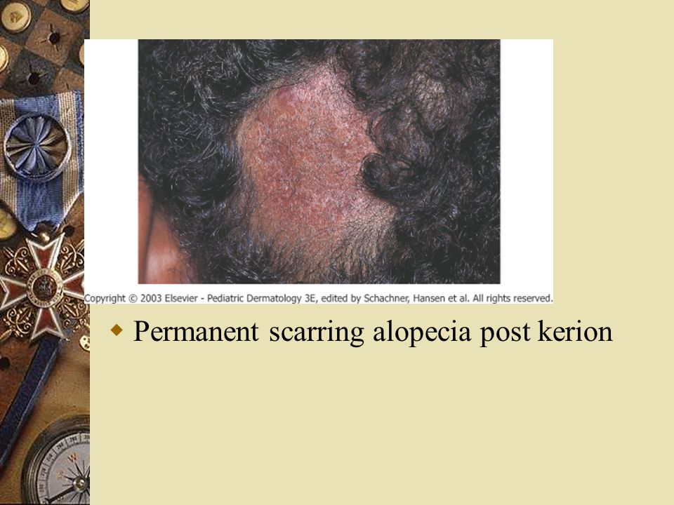 Permanent scarring alopecia post kerion