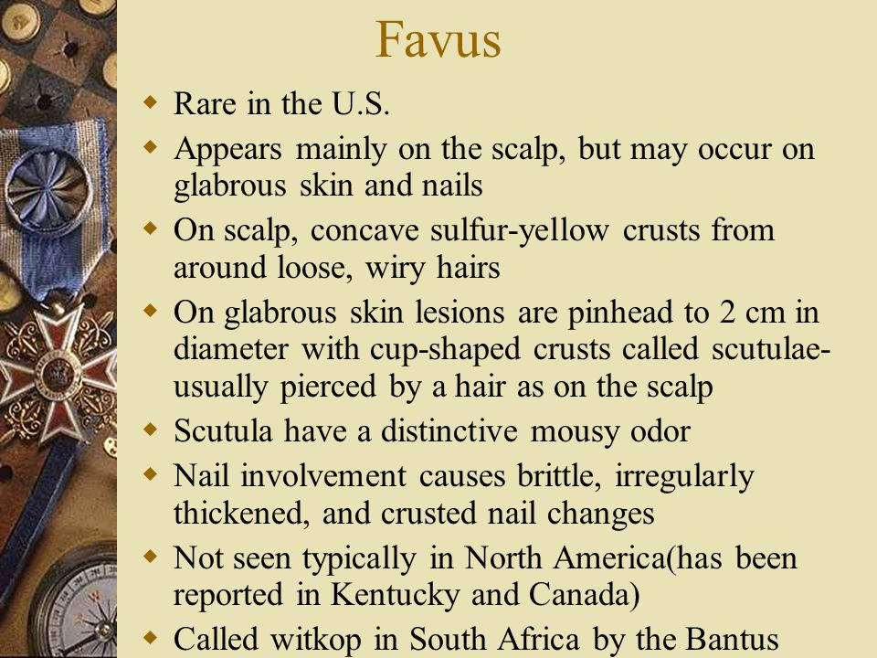 Favus Rare in the U.S. Appears mainly on the scalp, but may occur on glabrous skin and nails.