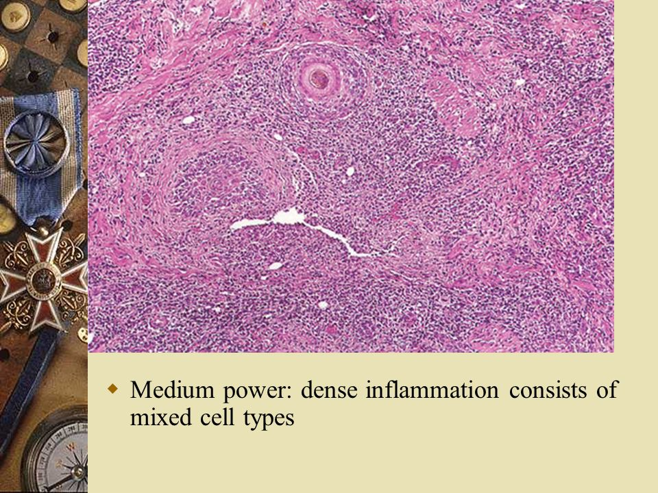 Medium power: dense inflammation consists of mixed cell types