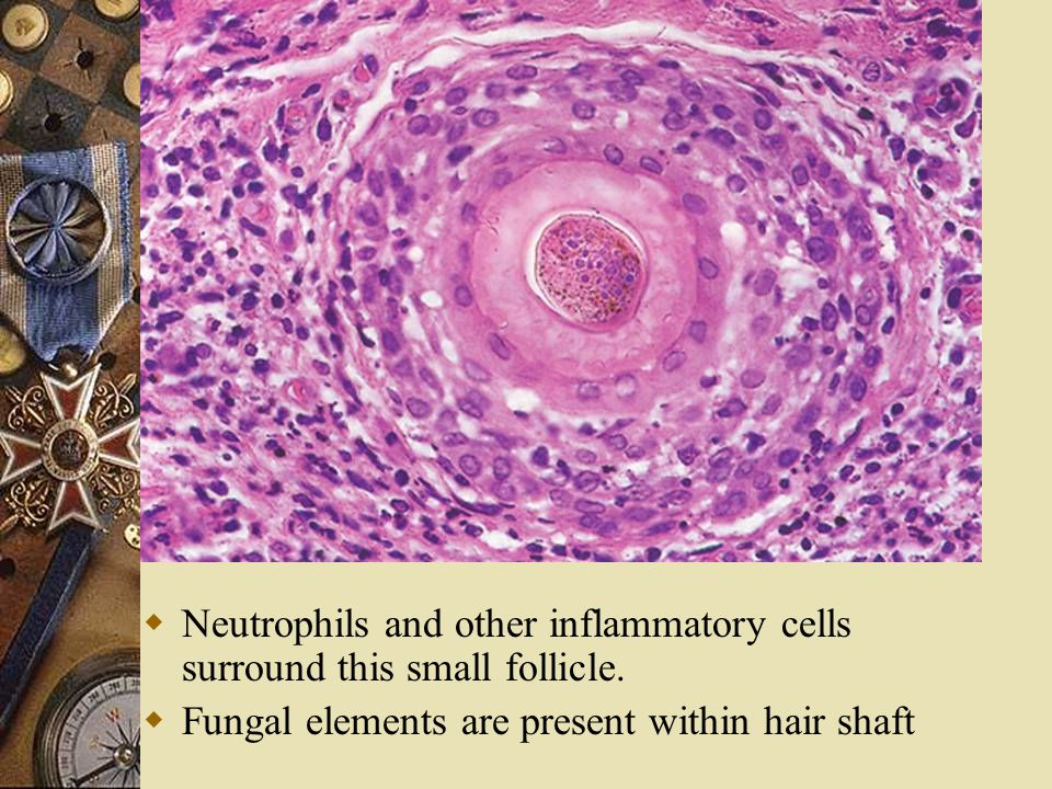 Neutrophils and other inflammatory cells surround this small follicle.