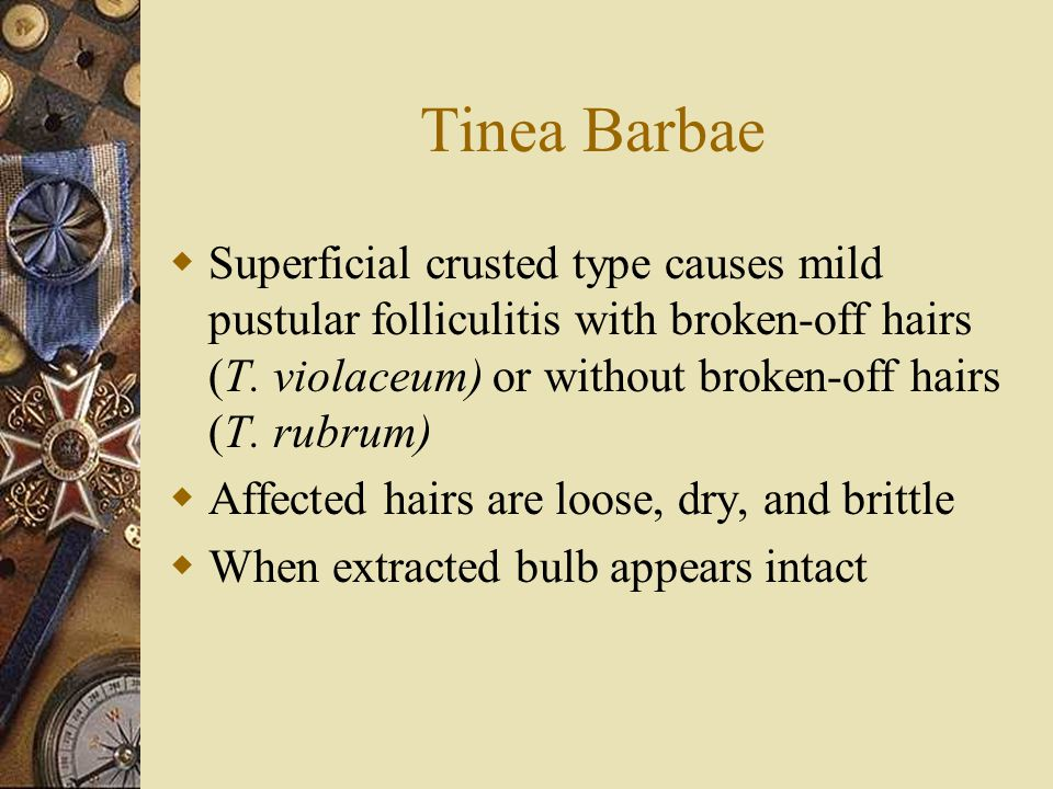 Tinea Barbae Superficial crusted type causes mild pustular folliculitis with broken-off hairs (T. violaceum) or without broken-off hairs (T. rubrum)