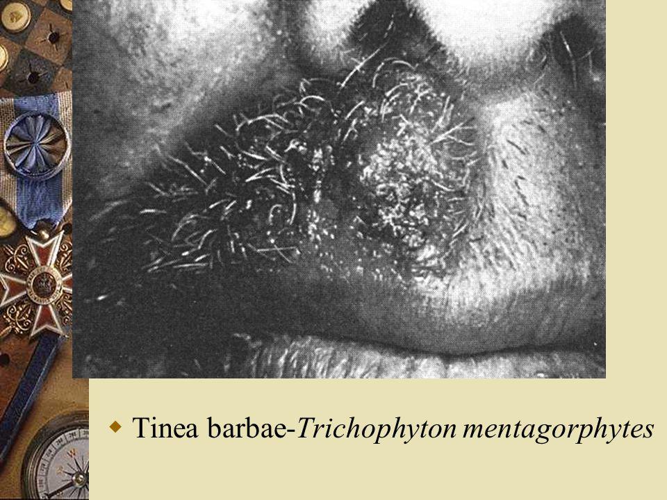 Tinea barbae-Trichophyton mentagorphytes