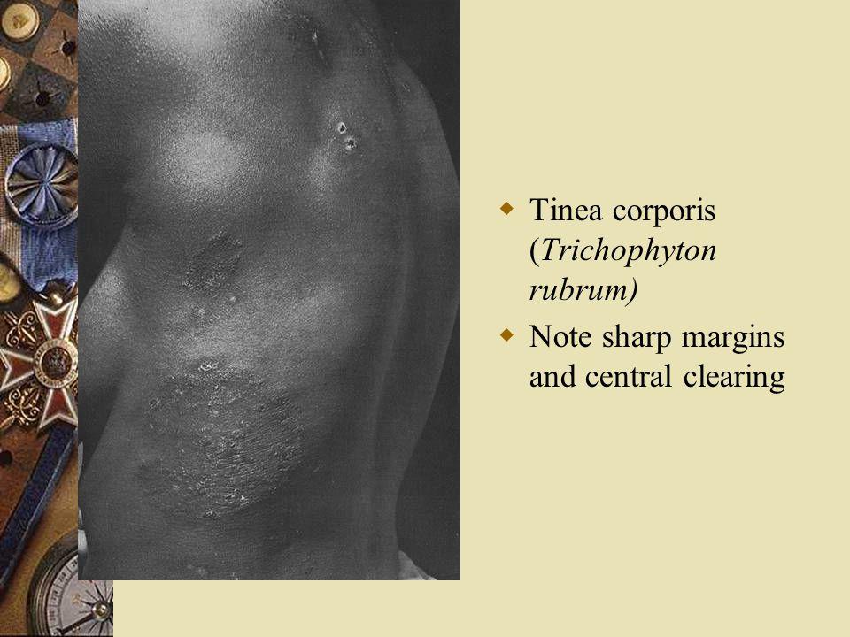 Tinea corporis (Trichophyton rubrum)
