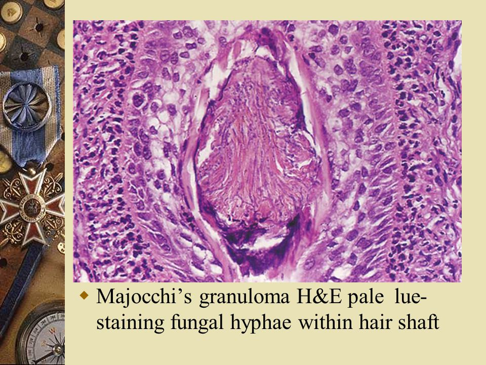 Majocchi's granuloma H&E pale lue-staining fungal hyphae within hair shaft