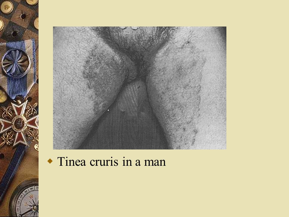 Tinea cruris in a man