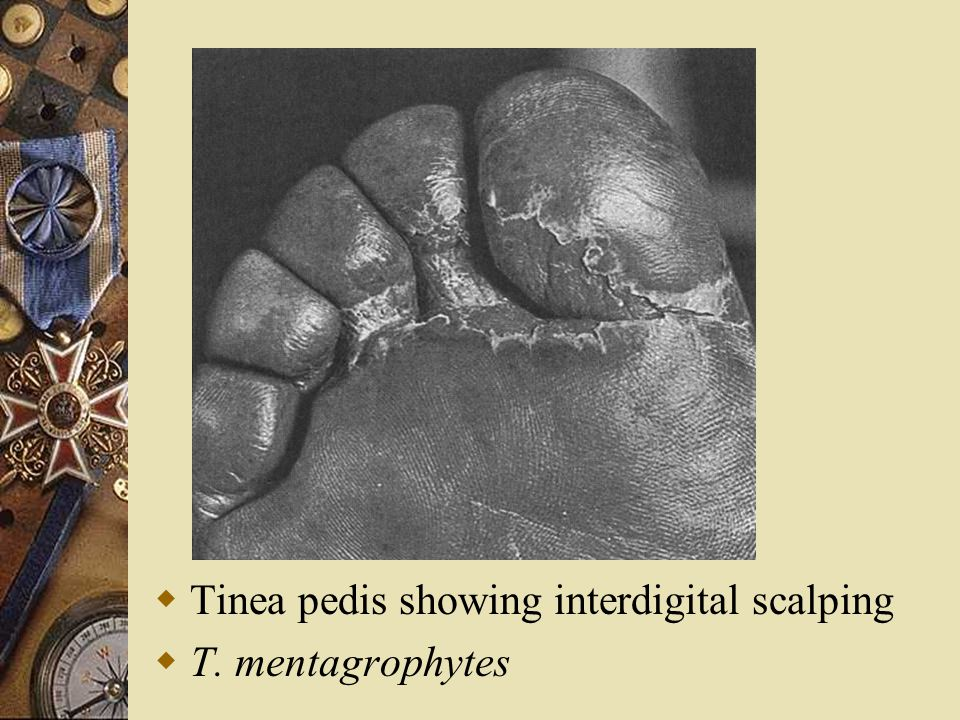 Tinea pedis showing interdigital scalping
