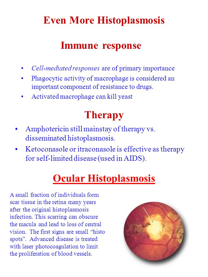 Even More Histoplasmosis