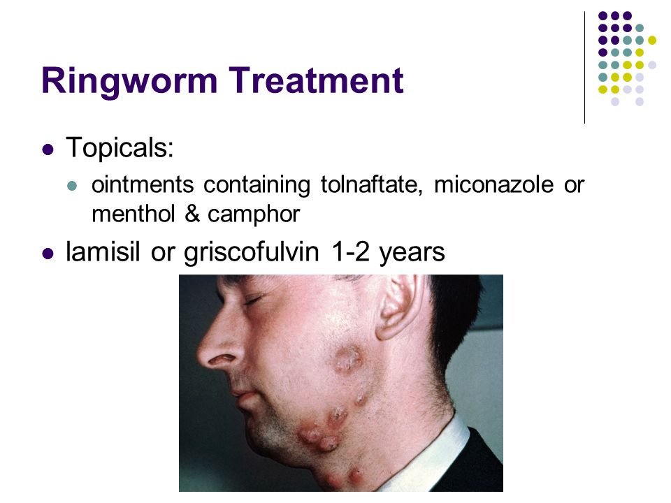Ringworm Treatment Topicals: lamisil or griscofulvin 1-2 years