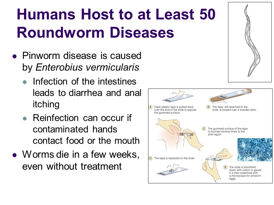 Humans Host to at Least 50 Roundworm Diseases