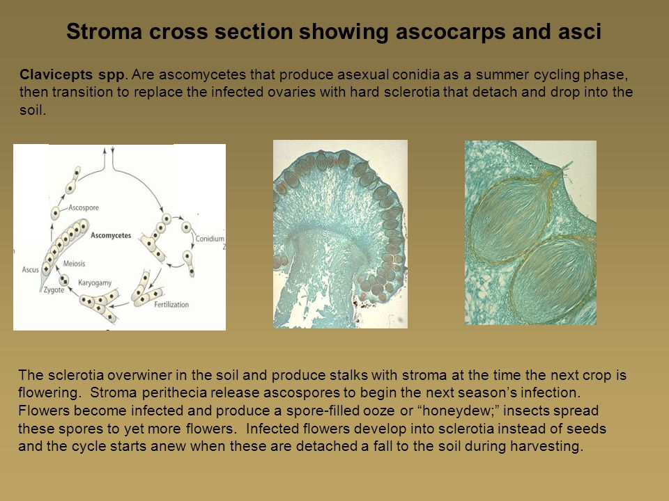Stroma cross section showing ascocarps and asci