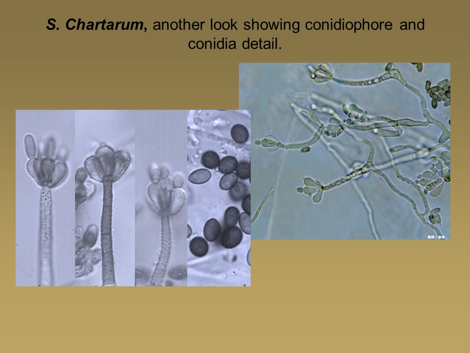S. Chartarum, another look showing conidiophore and conidia detail.