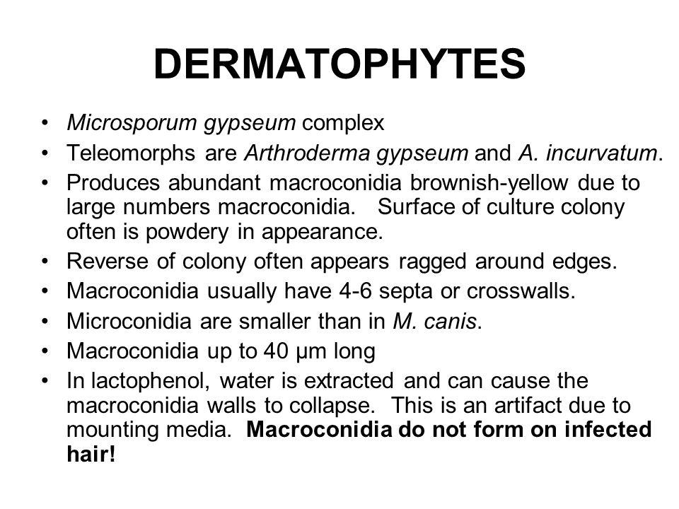 DERMATOPHYTES Microsporum gypseum complex