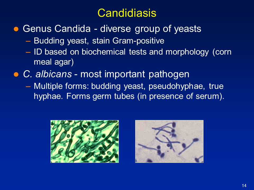 Candidiasis Genus Candida - diverse group of yeasts