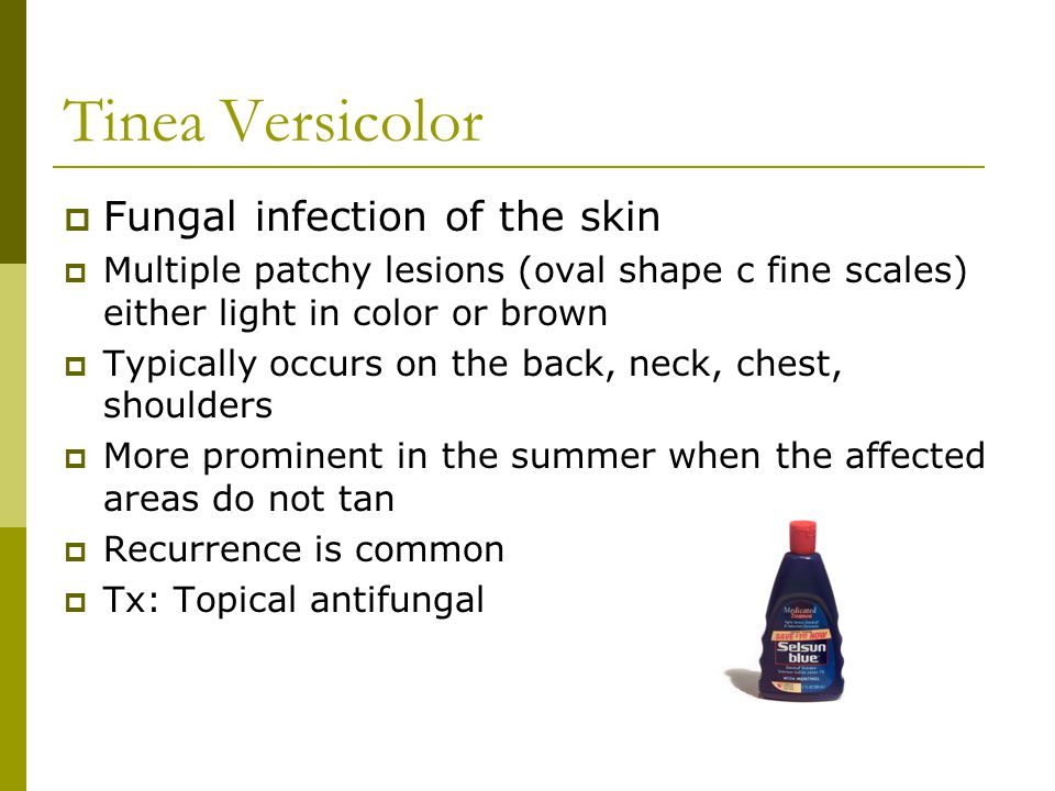 Tinea Versicolor Fungal infection of the skin
