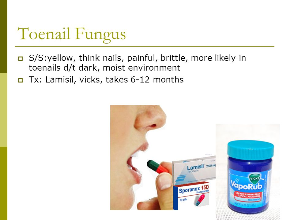 Toenail Fungus S/S:yellow, think nails, painful, brittle, more likely in toenails d/t dark, moist environment.