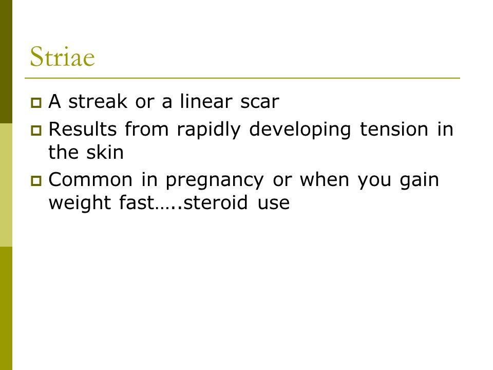 Striae A streak or a linear scar
