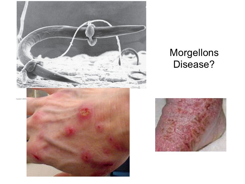 Morgellons Disease Figure 31.4 Specialized hyphae