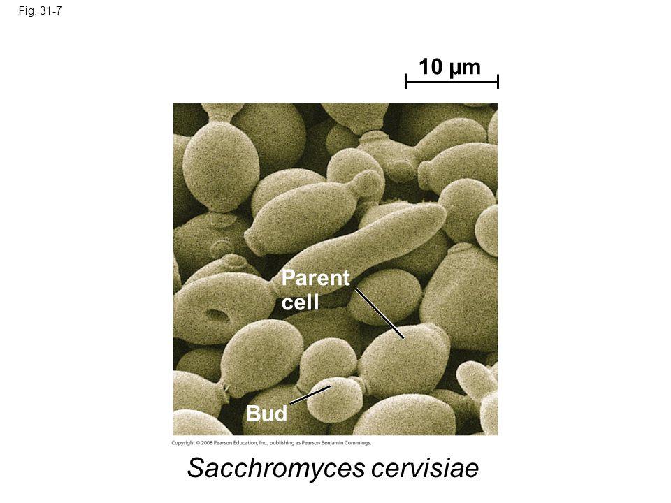 Sacchromyces cervisiae
