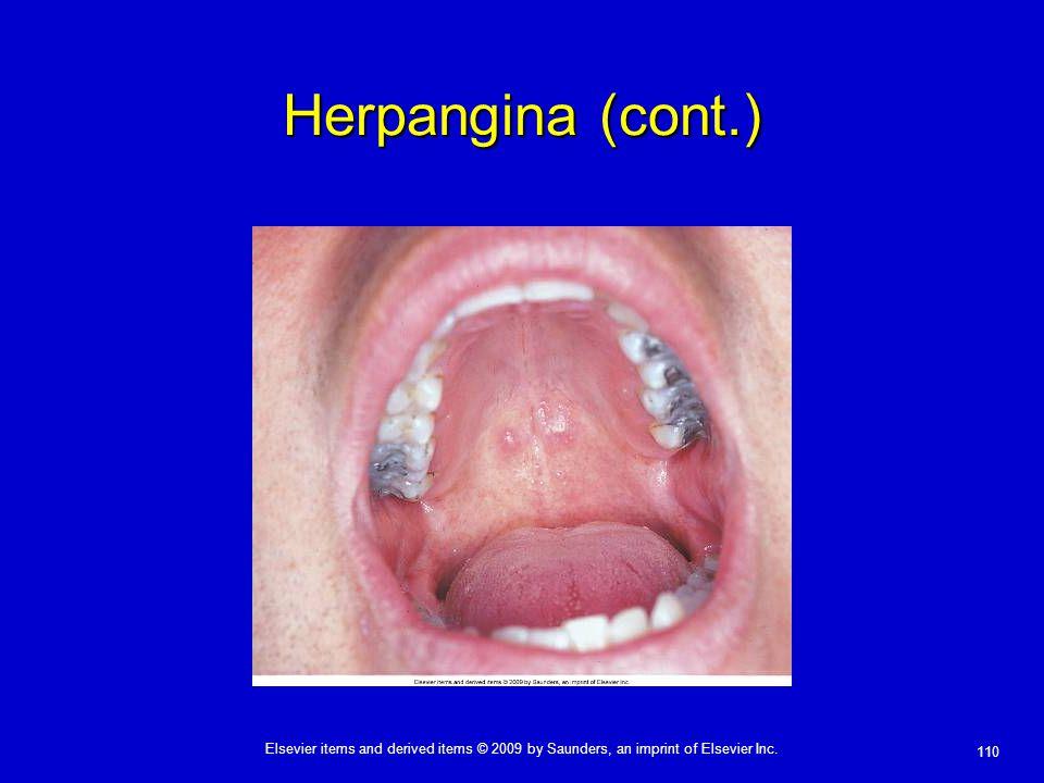 Herpangina (cont.)