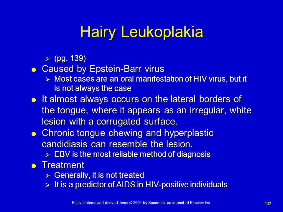 Hairy Leukoplakia Caused by Epstein-Barr virus