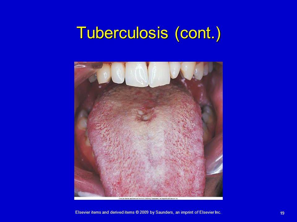 Tuberculosis (cont.)