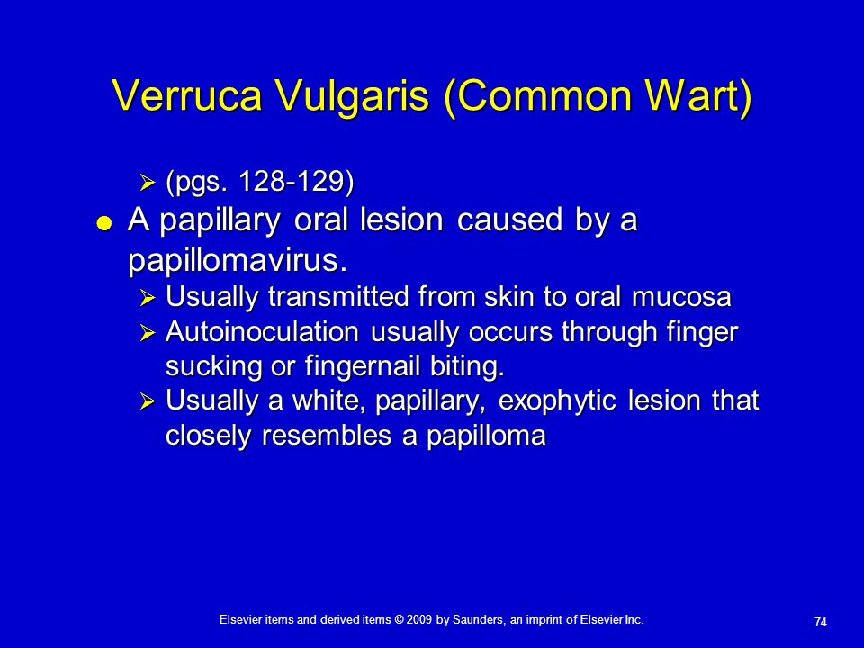 Verruca Vulgaris (Common Wart)