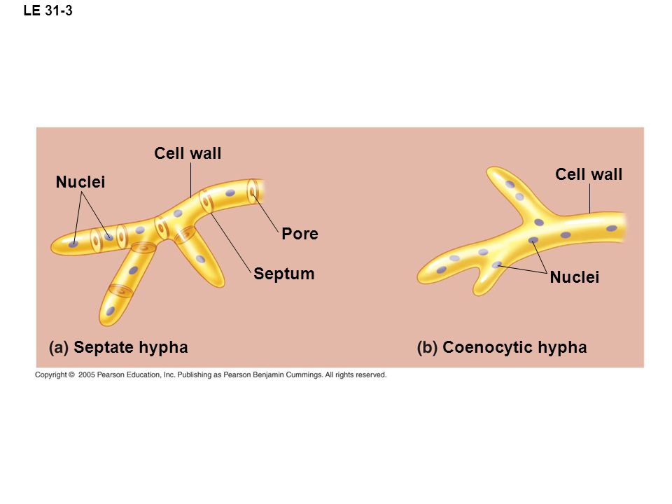 Cell wall Cell wall Nuclei Pore Septum Nuclei Septate hypha